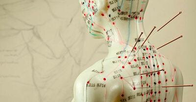 acupuntura-conheca-tudo-sobre