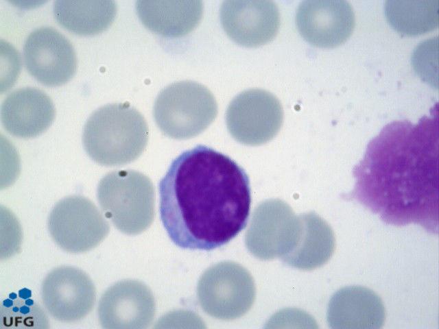 serie plaquetaria anisocitose plaquetinea