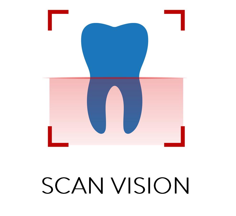 scan vision